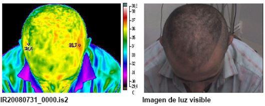 Termografía 1 de reactivación sanguínea mediante masaje capilar S01