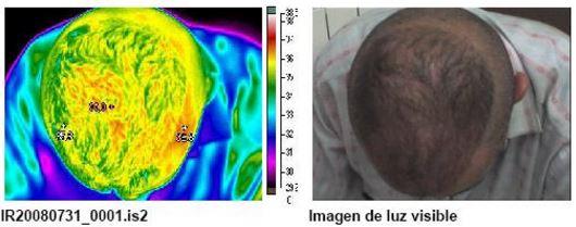 Termografía 2 de reactivación sanguínea mediante masaje capilar S01