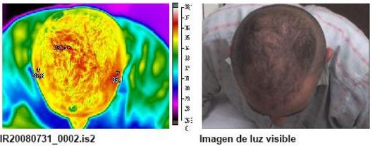 Termografía 3 de reactivación sanguínea mediante masaje capilar S01