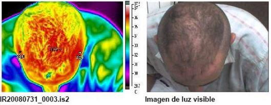 Termografía 4 de reactivación sanguínea mediante masaje capilar S01