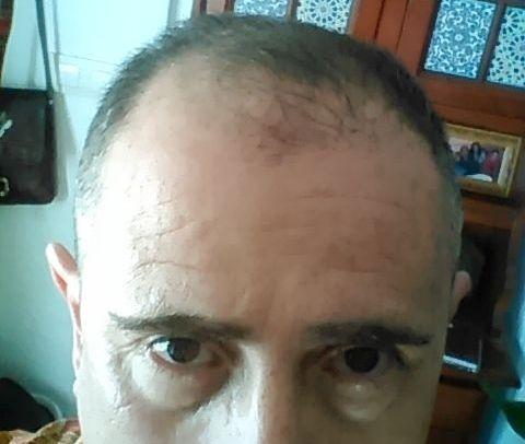Recuperación por masaje capilar 1