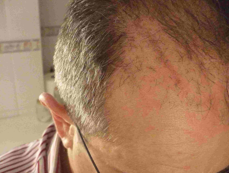 Cicatrices masaje tejido profundo