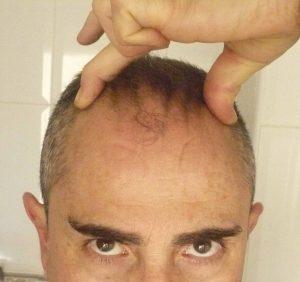 Crecimiento de cabello en pliegues del cuero cabelludo